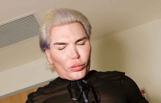 Човекот кукла има четири ребра помалку, 150 операции на себе, а природно некогаш изгледаше вака (фото)