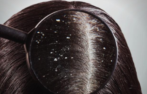 Првутот во косата е проблем што ги мачи многумина: Овие 4 природни рецепти можат да ви помогнат