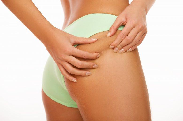 Заборавете на скапи третмани: Еве кои намирници го бришат целулитот
